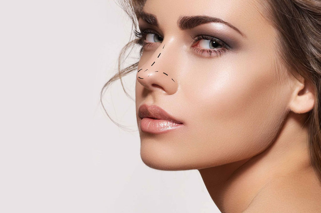 Rhinoplasty / Nose job Nashik