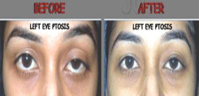 Eyelid surgery in nashik  Plastic surgery in nashik