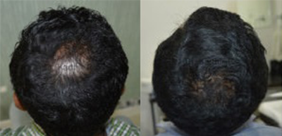 Hair growth treatment in nashik  Plastic Surgeon in nashik