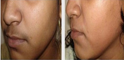 Laser Hair removal Treatment in nashik   Symphony Clinics   Dr LM Dayananda