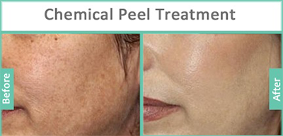 Chemical Peel Treatment in nashik | Plastic Surgeon in nashik | Symphony Clinics