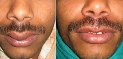 Lip augmentation in nashik | Plastic Surgeon in nashik | Symphony Clinics