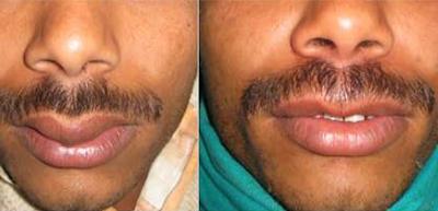Lip augmentation in nashik   Plastic Surgeon in nashik   Symphony Clinics