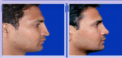 Rhinoplasty/nose job in nashik | Plastic Surgeon in nashik | Symphony Clinics