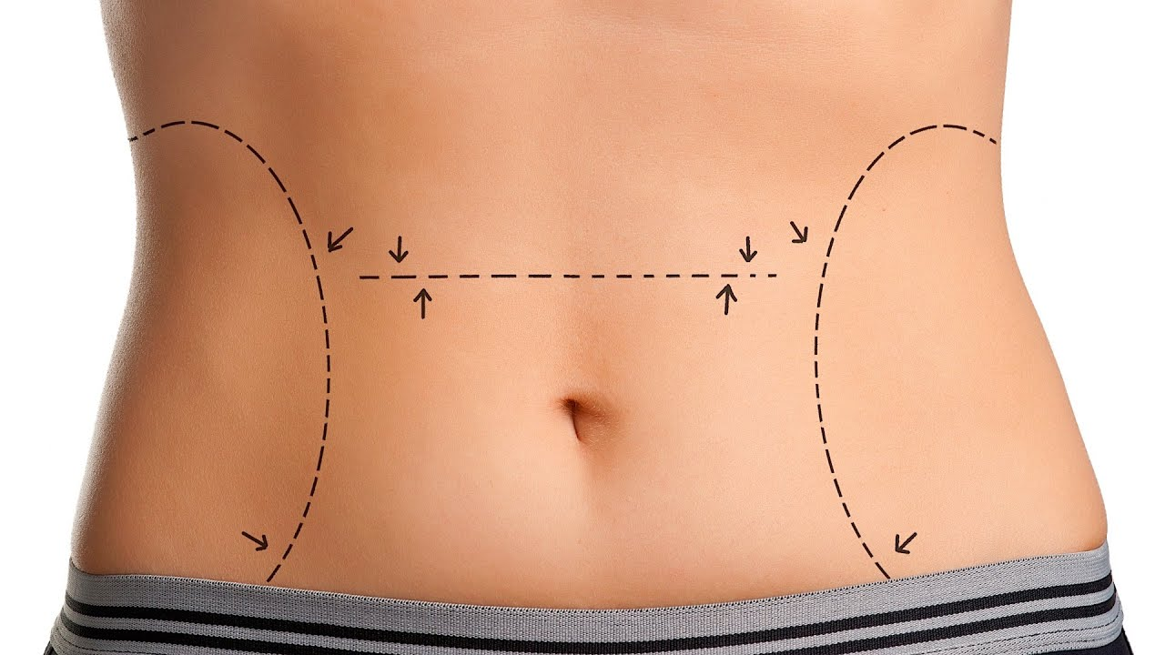 Tummy Tuck Surgeon in Nashik | Dr.L.M.Dyanand plastic surgeon in Nashik